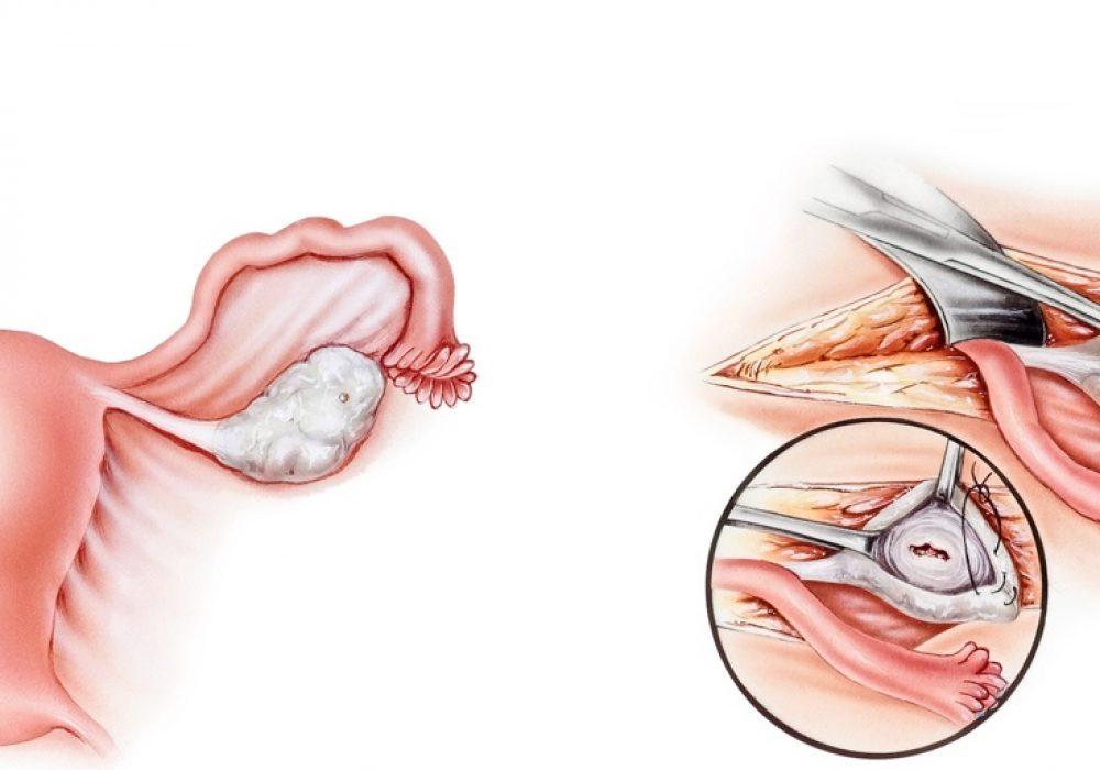 laparoscopic-ovarian-cystectomy