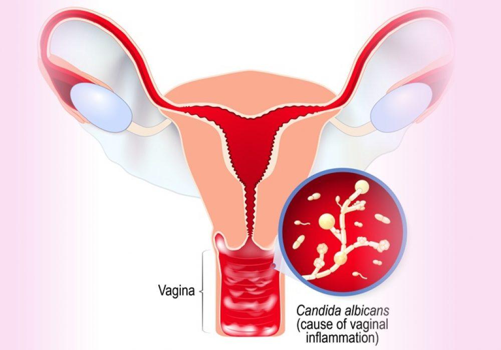 vaginal-irritation-and-pid-pelvic-inflammatory-disease